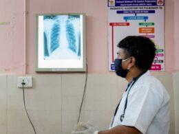 Consulta con doctor, revisando radiografía de pulmones